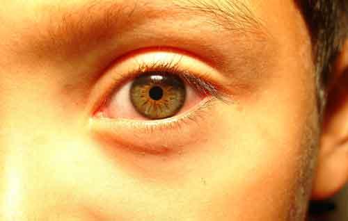 eye-change.jpg